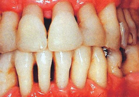 fluoride bad for teeth picture 17