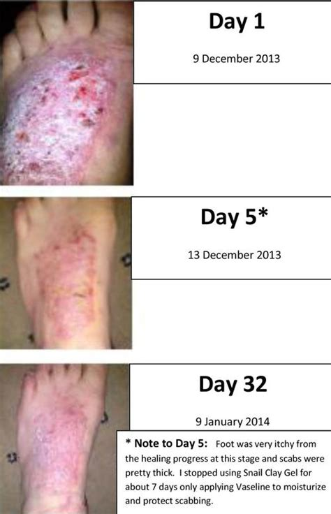 acdermin gel good for acne mark picture 9