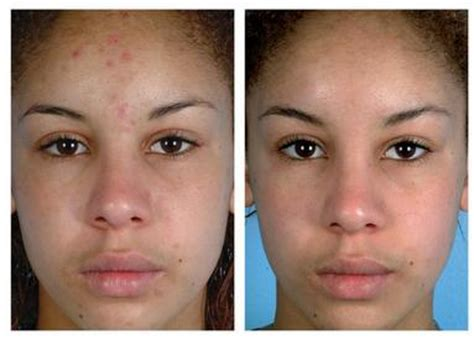 acne treatment picture 5