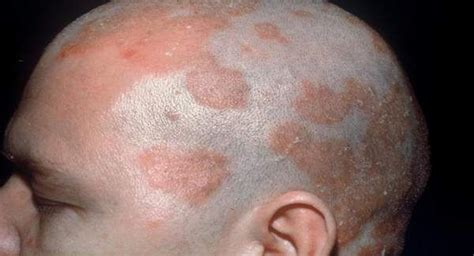 differences herpes yeast infection 2014 men picture 9