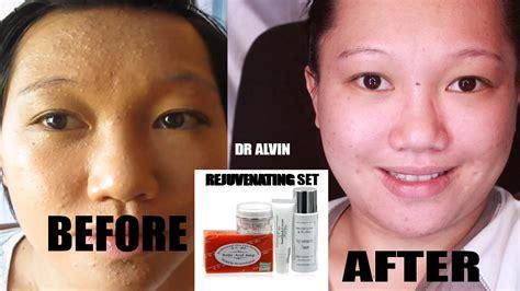 dr alvin care picture 10