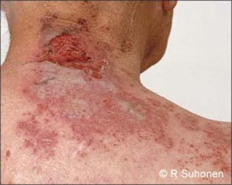 herpes pictures picture 1