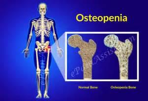 pain in bones picture 2