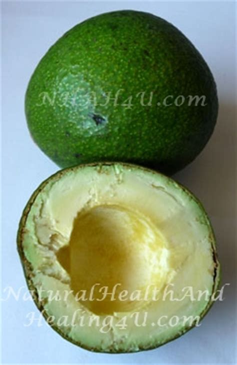 avocado benefits to joint and muscle picture 10
