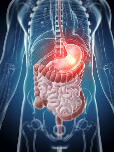 gastro intestinal disorders picture 7