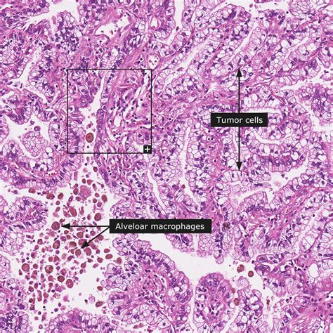adenoma and adenocarcinoma of colon different pathology picture 6