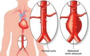 Aneurysm warning bleed low blood pressure picture 11