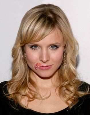 what celebrities have herpes picture 3