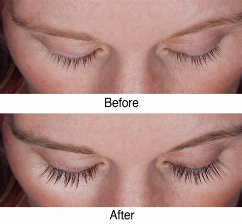 idol lash reviews before after picture 2