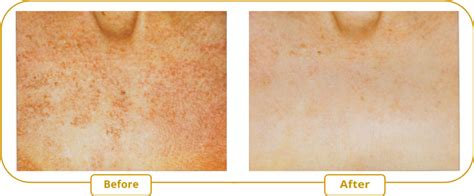 hair and skin discoloration picture 11