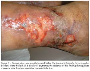elderly skin ulcers picture 11