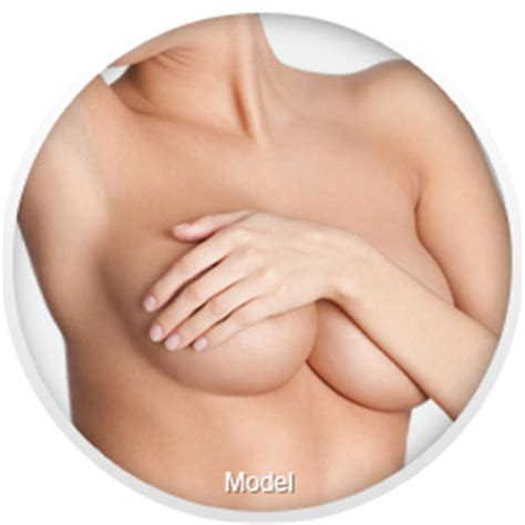 breast augmentation long island picture 2