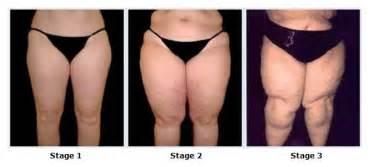 Unusal weight gain picture 3