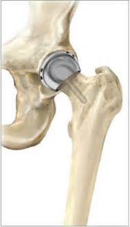 hip joint resurfacing performed in texas picture 1