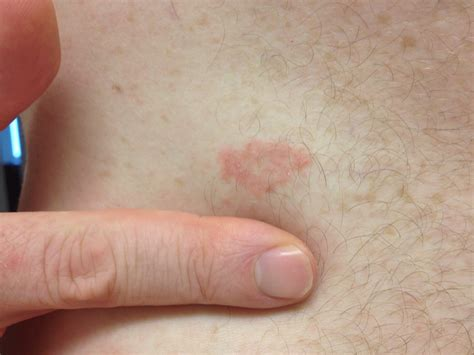 diamond shaped rash skin picture 1