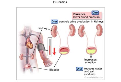 high blood pressure caused by bladder retention picture 12
