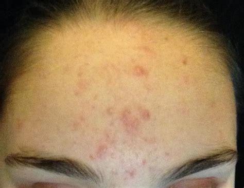 acne scars message board picture 7