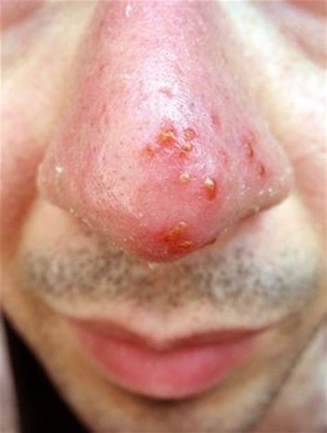 what causes blisters herpes picture 10