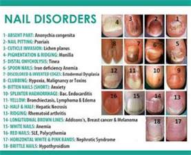 thyroid problems and fingernail problems picture 2