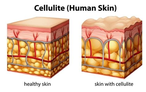 cellulite treatment new york city picture 10
