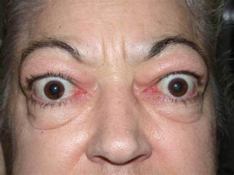 acne graves disease picture 15
