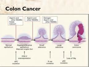 colon cancer diagnosis barium picture 15