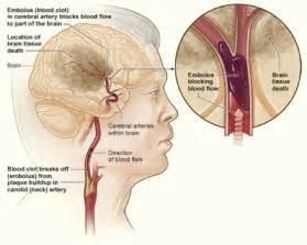 causes of blood clot in brain picture 1