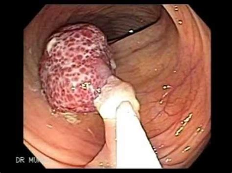 polyps on your colon picture 2