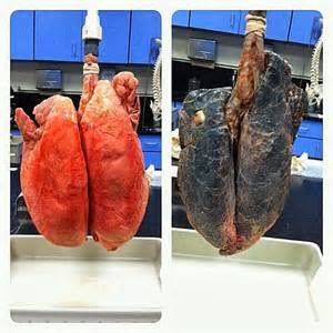 tuberculosis and not quit smoking picture 1