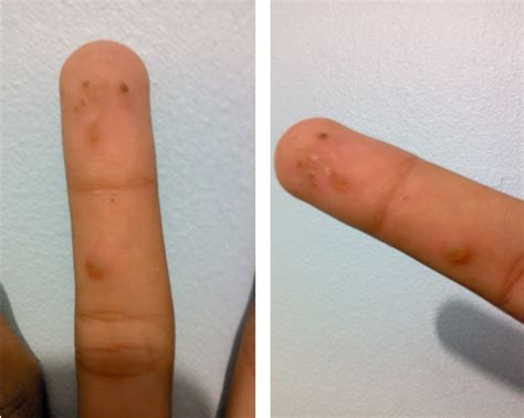 kulugo treatment picture 5