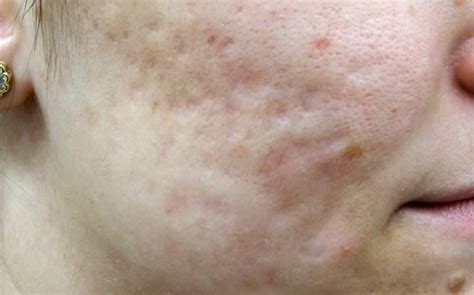 acne scar removal home laser picture 5