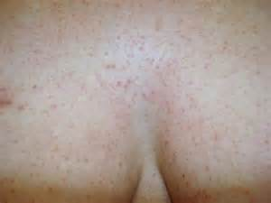 holes in your skin from hives? picture 10