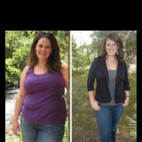 weight loss proceedures picture 13
