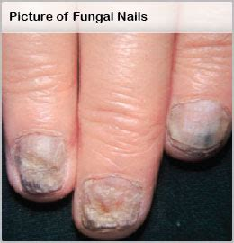 laser fungal toenail treatment sacramento picture 1