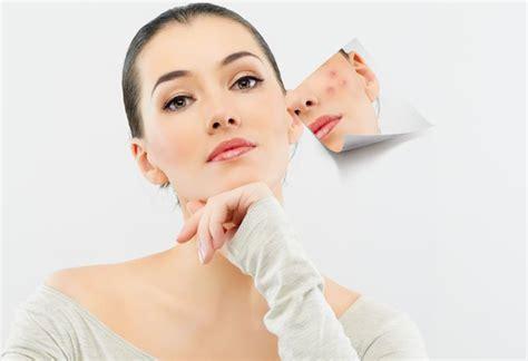 treat acne picture 1