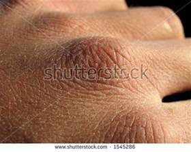 rough skin on knuckles picture 2