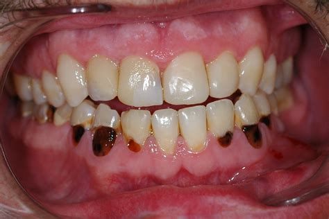decaying teeth pictures picture 2