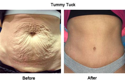 stretch marks laser surgery picture 5