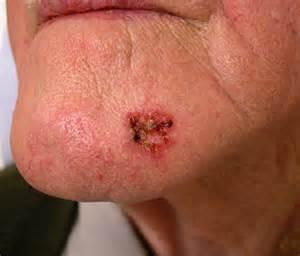 malignant melanoma skin cancer picture 5