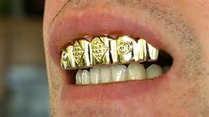 dimond crown teeth picture 9