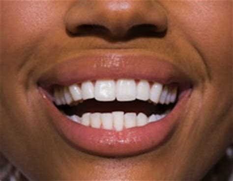 healthy teeth pictures picture 17
