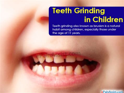 teeth pain picture 1