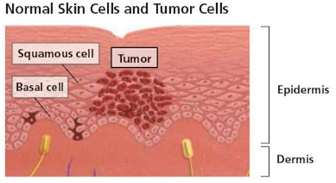 sas cell skin cancer picture 3
