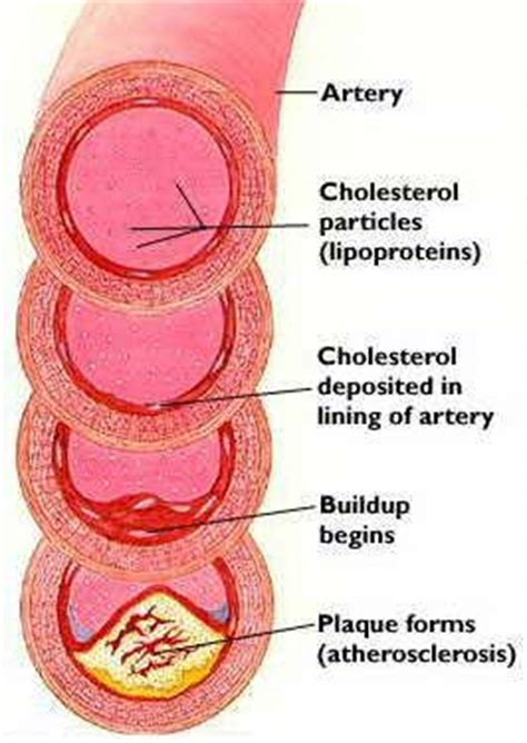 high cholesterol and lips picture 5