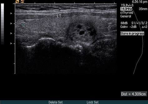 well defined nodule thyroid picture 6