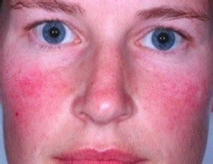 causes of acne picture 3