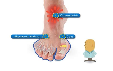 osteoarthritis pain relief picture 3
