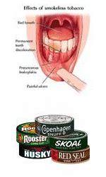 copenhagen or skoal health risks picture 7