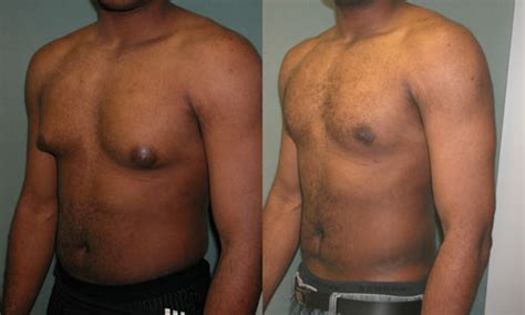 breast enlargement ny picture 1