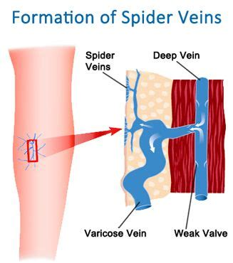 what herbs are good to open the veins picture 9